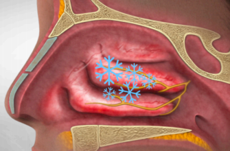 Tampa Nasal Surgery | Sinus Disease Treatment Florida ENT